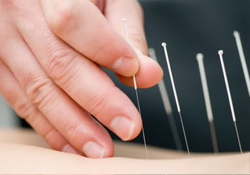 Acupuncture for pain management Dr. Chia Hua Linda Chow