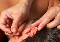 Ear needle therapy Dr. Chia Hua Linda Chow
